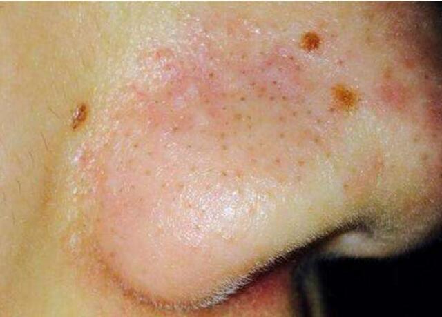 蟎蟲叮咬鼻子後症狀圖片